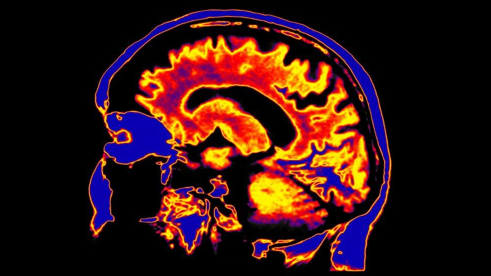 fMRI of the brain