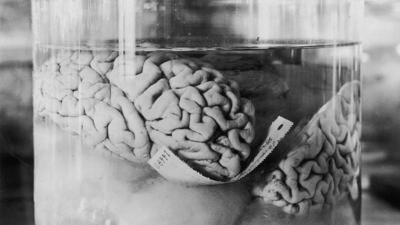 brains as medicine