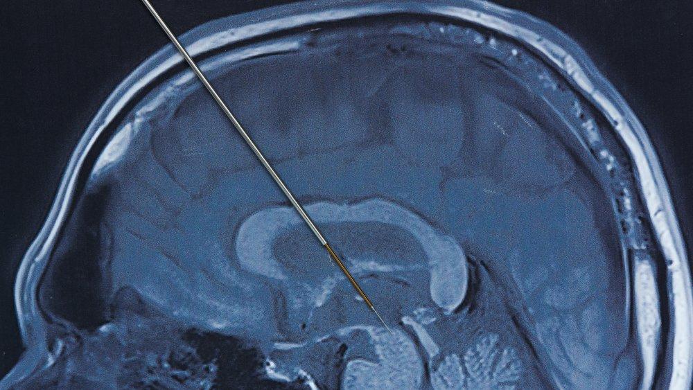 needle in brain