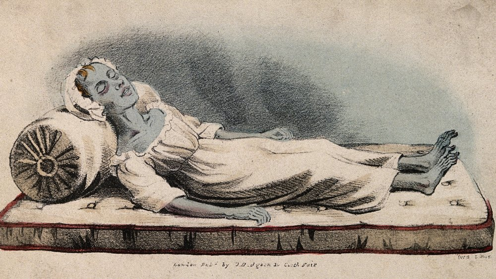 A dead victim of cholera at Sunderland in 1832. Coloured lithograph by IWG