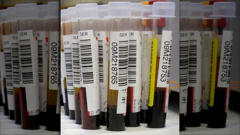 Blood in test tubes for a study