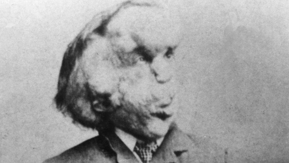 Joseph Merrick, the Elephant Man