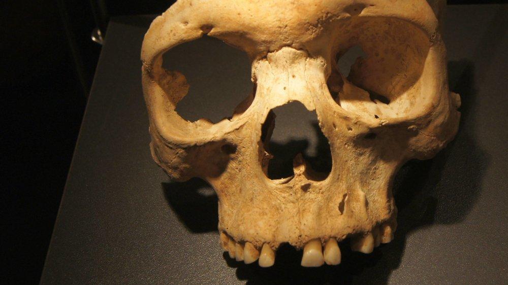 Herxheim skull